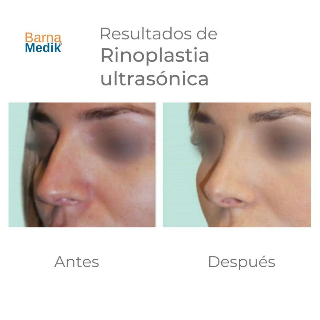 antes-despues-rinoplastia-barnamedik