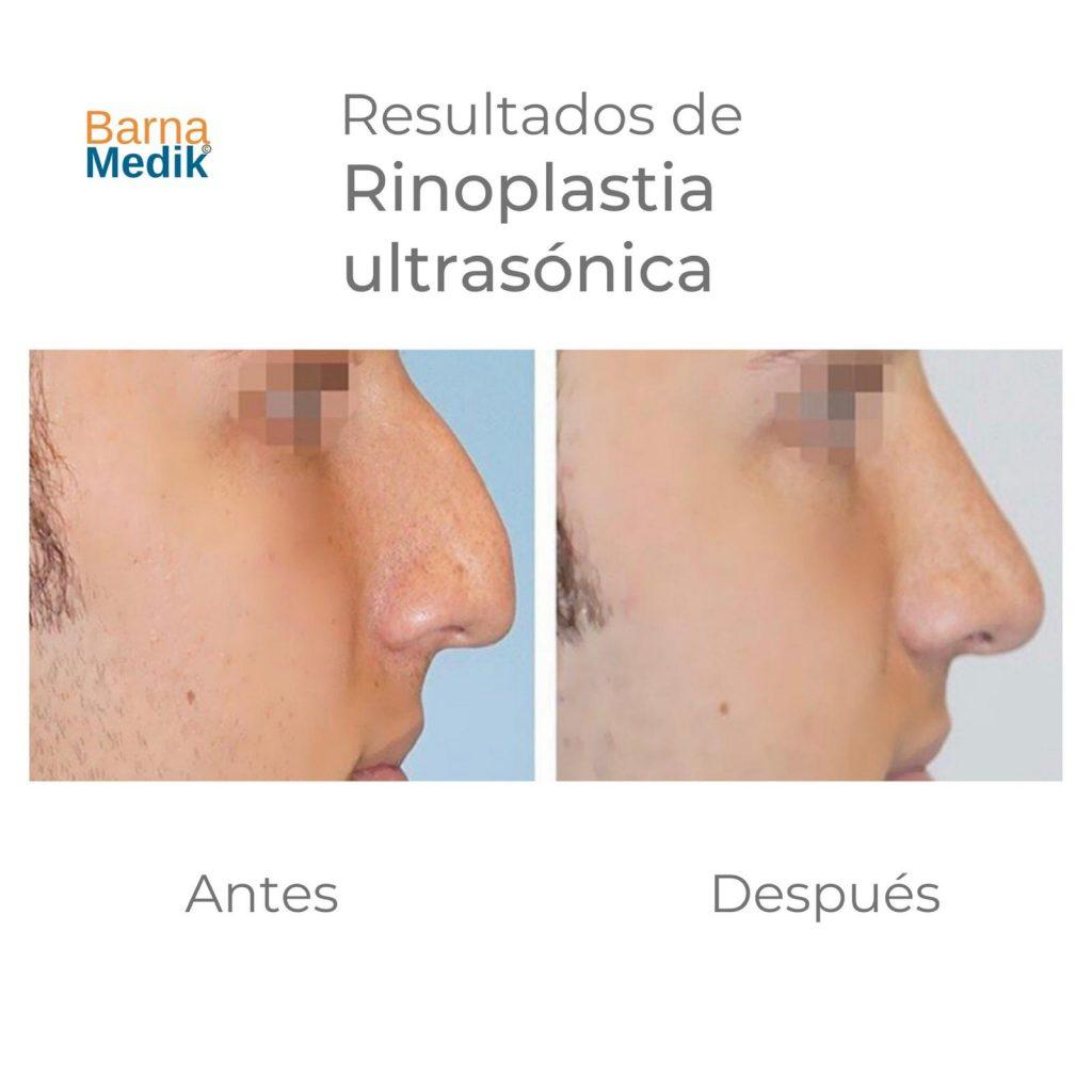 antes-despues-rinoplastia-barnamedik 2