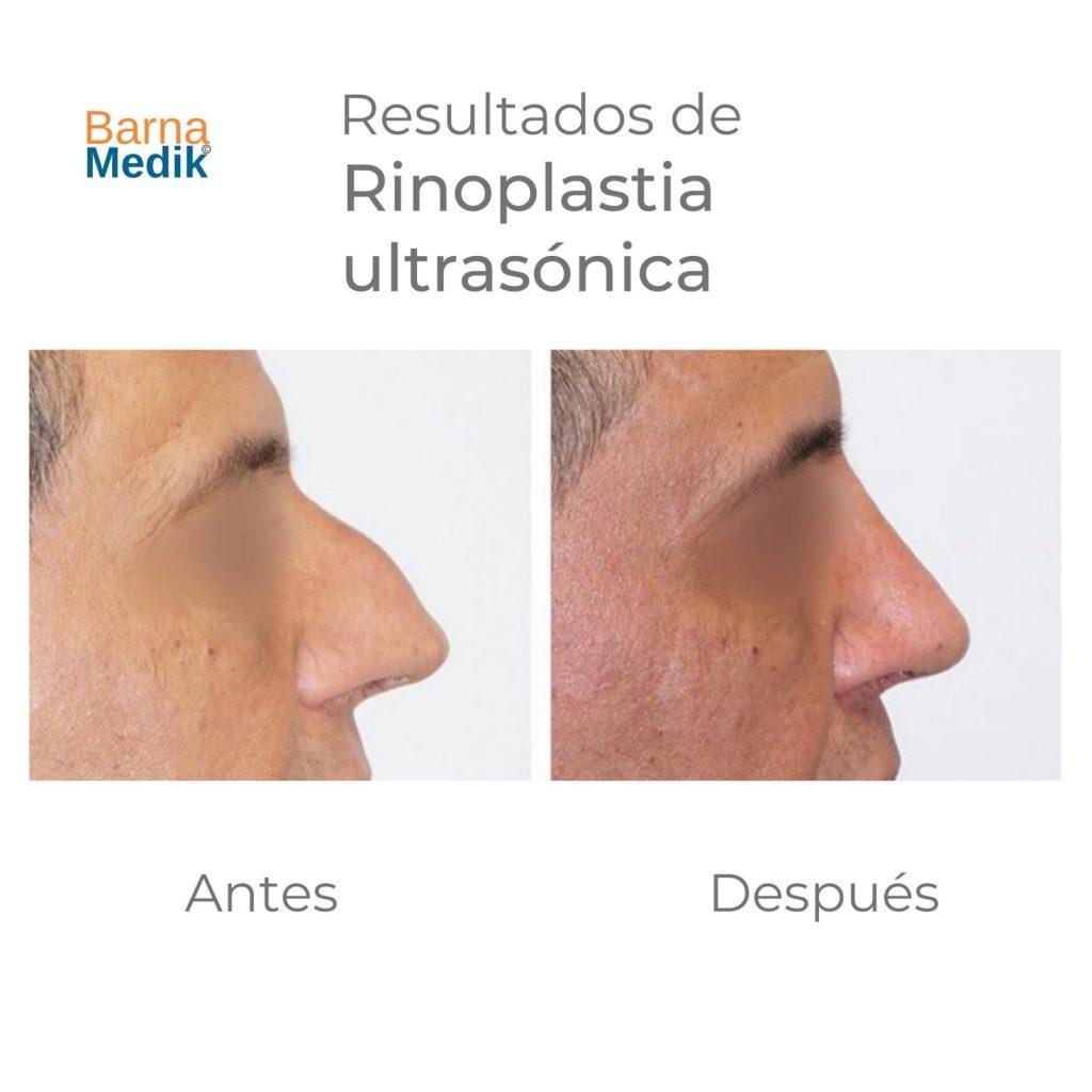 antes-despues-rinoplastia-barnamedik 4