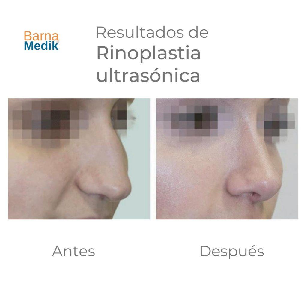 antes-despues-rinoplastia-barnamedik 5