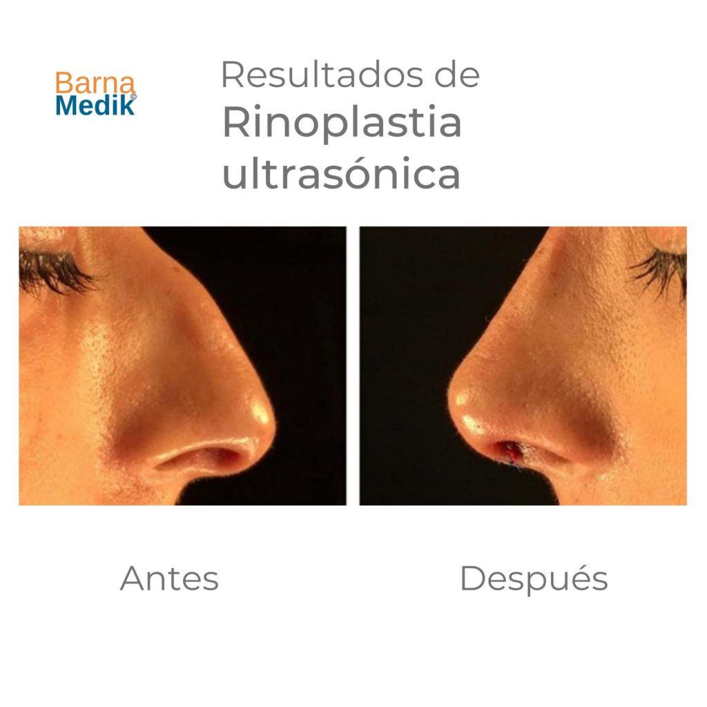 antes-despues-rinoplastia-barnamedik 6